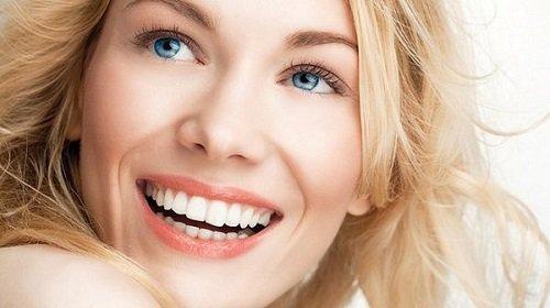 Niềng răng mắc cài sứ tự buộc có thực sự tốt? 3
