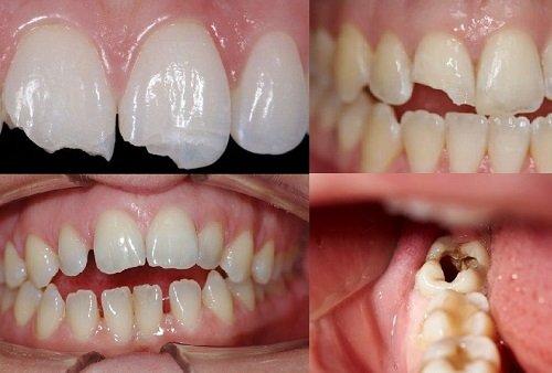 Trước và sau quá trình trám răng nên ăn gì?1