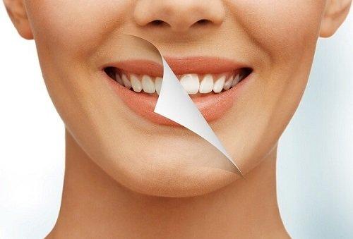 Ăn gì sau khi tẩy trắng răng? Có cần tìm hiểu chuyên sâu không? 1