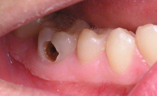 Bọc răng hàm bị sâu giá bao nhiêu là rẻ nhất? 1