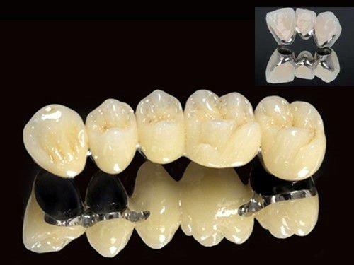 Bọc răng hàm bị sâu giá bao nhiêu là rẻ nhất? 3