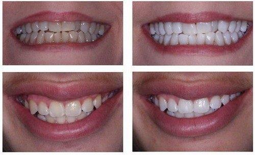 Bọc răng sứ có hại không đối với phụ nữ mang thai? 2