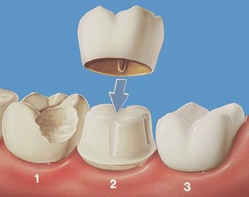 Bọc răng sứ kim loại giá bao nhiêu? Có rẻ không? 2