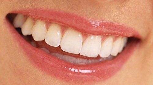 Bọc răng sứ là gì? Làm gì khi bọc răng sứ? 1
