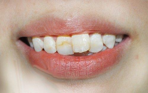 Bọc sứ răng cửa bị lệch theo quy trình chuẩn vô trùng 1