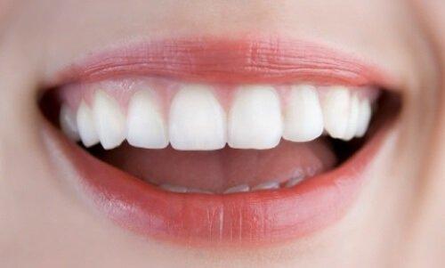 Bọc sứ răng cửa bị lệch theo quy trình chuẩn vô trùng 2