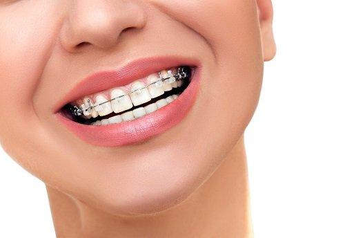 Có nên niềng răng không với răng bị mọc lệch lạc? 1