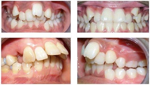 Có nên niềng răng không với răng bị mọc lệch lạc? 2