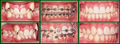 Có nên niềng răng không với răng bị mọc lệch lạc? 3