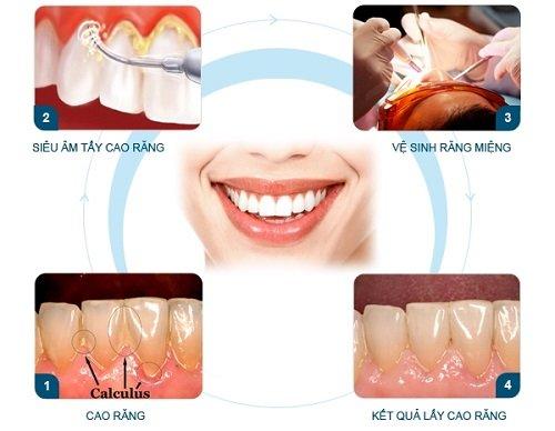 Lấy cao răng ở đâu an toàn? Bạn đã có thông tin nào chưa? 2