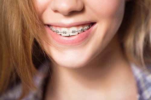 Niềng răng có ảnh hưởng đến thần kinh không vậy? 1