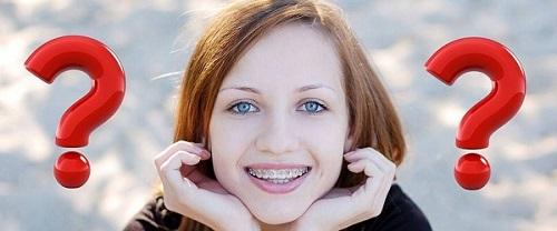 Niềng răng có ảnh hưởng đến thần kinh không vậy? 3