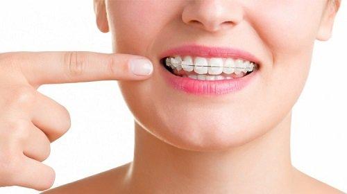 Niềng răng mắc cài sứ có đau không? Cần tư vấn 1