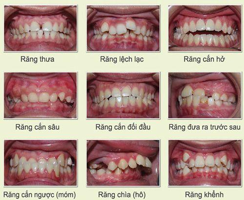 Niềng răng mắc cài sứ có đau không? Cần tư vấn 2