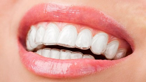 Niềng răng trong suốt có hiệu quả không khi thưa răng? 1