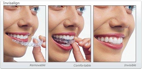 Niềng răng trong suốt có hiệu quả không khi thưa răng? 2