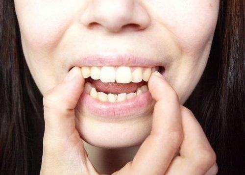 Răng bọc sứ có niềng được không? Cần phải làm gì? 1