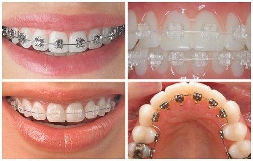 Răng bọc sứ có niềng được không? Cần phải làm gì? 2