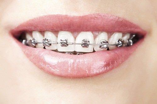 Răng bọc sứ có niềng được không? Cần phải làm gì? 3