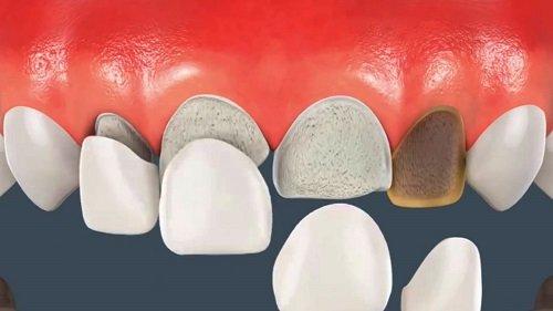 Dán răng sứ có bền không? Làm gì để tăng tuổi thọ cho răng sứ? 1