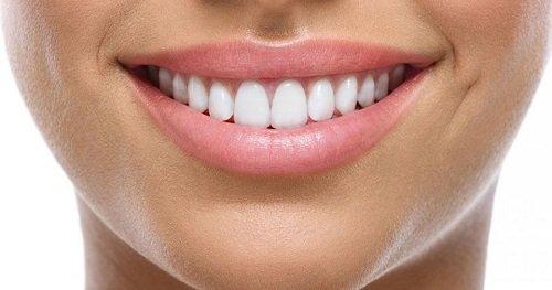 Dán răng sứ có bền không? Làm gì để tăng tuổi thọ cho răng sứ? 3