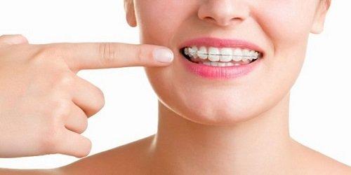 Giải thích tình trạng ê buốt khi niềng răng 1