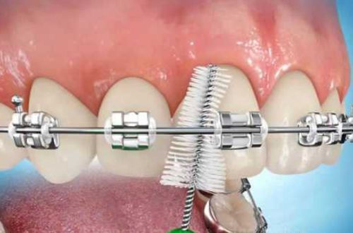 Giải thích tình trạng ê buốt khi niềng răng 3