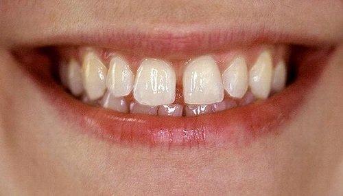 Kinh nghiệm niềng răng thưa từ chuyên gia nha khoa 1