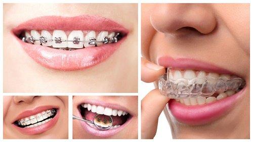 Kinh nghiệm niềng răng thưa từ chuyên gia nha khoa 2