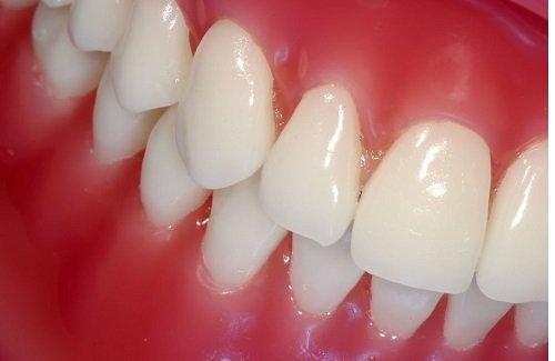 Thực hiện lấy cao răng bao nhiêu tiền 1 lần theo định kỳ 2