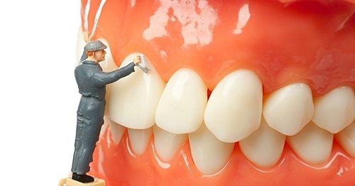 Thực hiện lấy cao răng bao nhiêu tiền 1 lần theo định kỳ 3