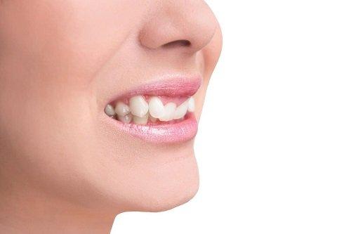 Dịch vụ nhổ răng khểnh có đau không thưa bác sĩ? 1