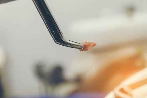 Dịch vụ nhổ răng khểnh có đau không thưa bác sĩ? 3