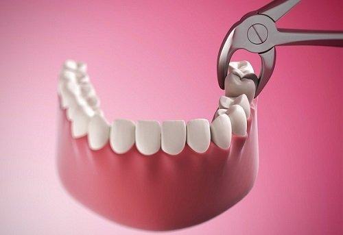 Nhổ răng khôn hàm dưới có nguy hiểm không? Vì sao2
