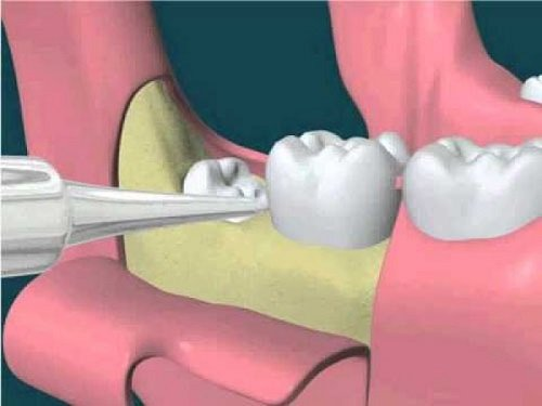 Nhổ răng khôn hàm dưới có nguy hiểm không? Vì sao3