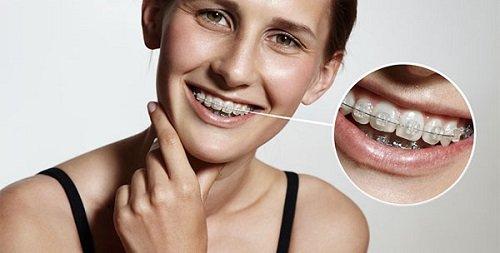 Hiện tượng niềng răng gây hôi miệng nhiều người gặp phải 1