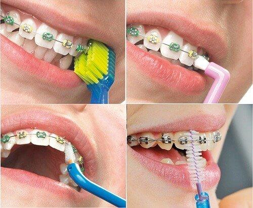 Hiện tượng niềng răng gây hôi miệng nhiều người gặp phải 3