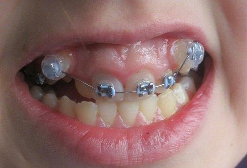 Nguyên nhân gây niềng răng bị hỏng và cách giải quyết 2