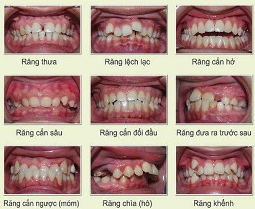 Lo lắng niềng răng bị lòi chân răng được trút bỏ 1