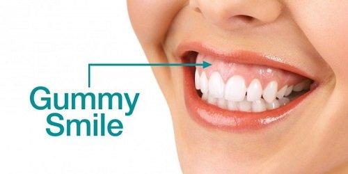 Lo lắng niềng răng bị lòi chân răng được trút bỏ 2
