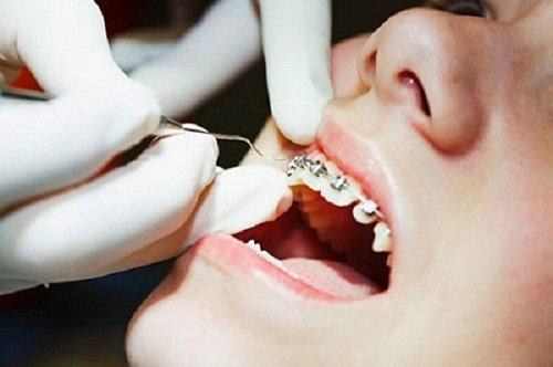 Niềng răng giai đoạn nào đau nhất trong cả quy trình? 2