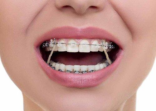 Niềng răng giai đoạn nào đau nhất trong cả quy trình? 3