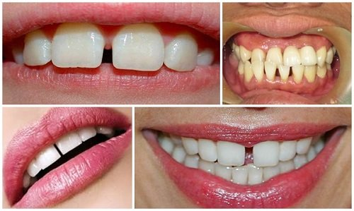 Niềng răng lệch hàm có hiệu quả không vậy? 1