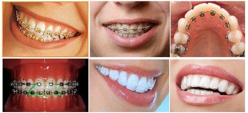 Niềng răng lệch hàm có hiệu quả không vậy? 2