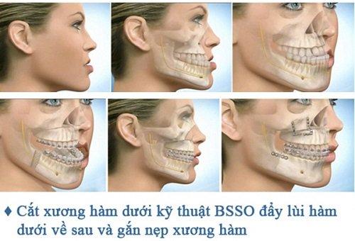 Niềng răng lệch hàm có hiệu quả không vậy? 3