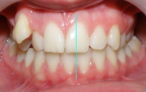 Niềng răng lệch nhân trung cho khuôn hàm đẹp 1