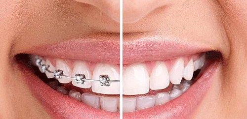 Niềng răng lệch nhân trung cho khuôn hàm đẹp 2