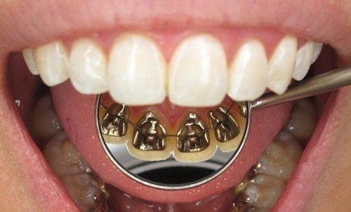 Niềng răng mặt trong là gì? Áp dụng cho những ai? 2