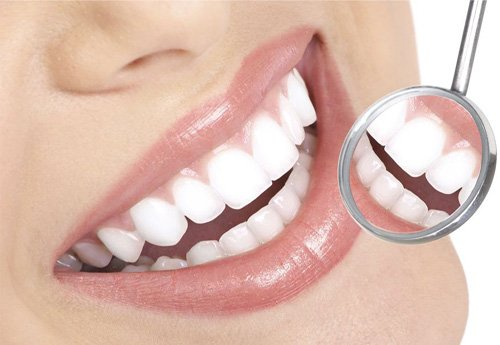 1 hàm răng sứ bao nhiêu tiền là có thể làm được? 1