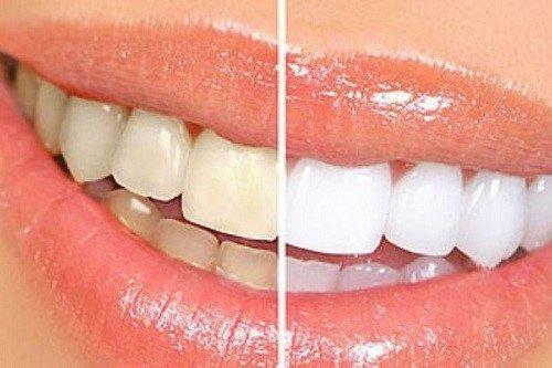 Tìm hiểu cách dùng và lưu ý khi sử dụng bột tẩy trắng eucryl 4